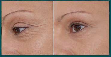 Bioxelan giảm quầng thâm mắt