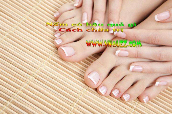 Bệnh nấm móng chân tay có những hậu quả gì và làm sao để chữa trị