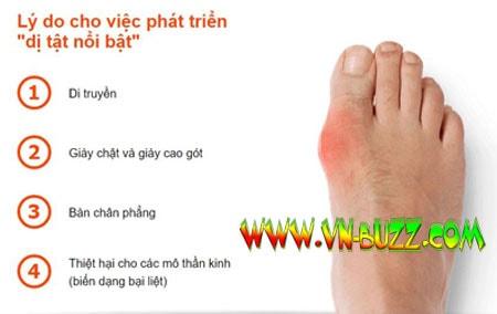 chứng biến dạng ngón chân cái