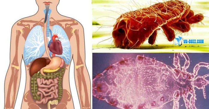 Dấu hiệu nhận biết cơ thể bạn đang bị nhiễm ký sinh trùng