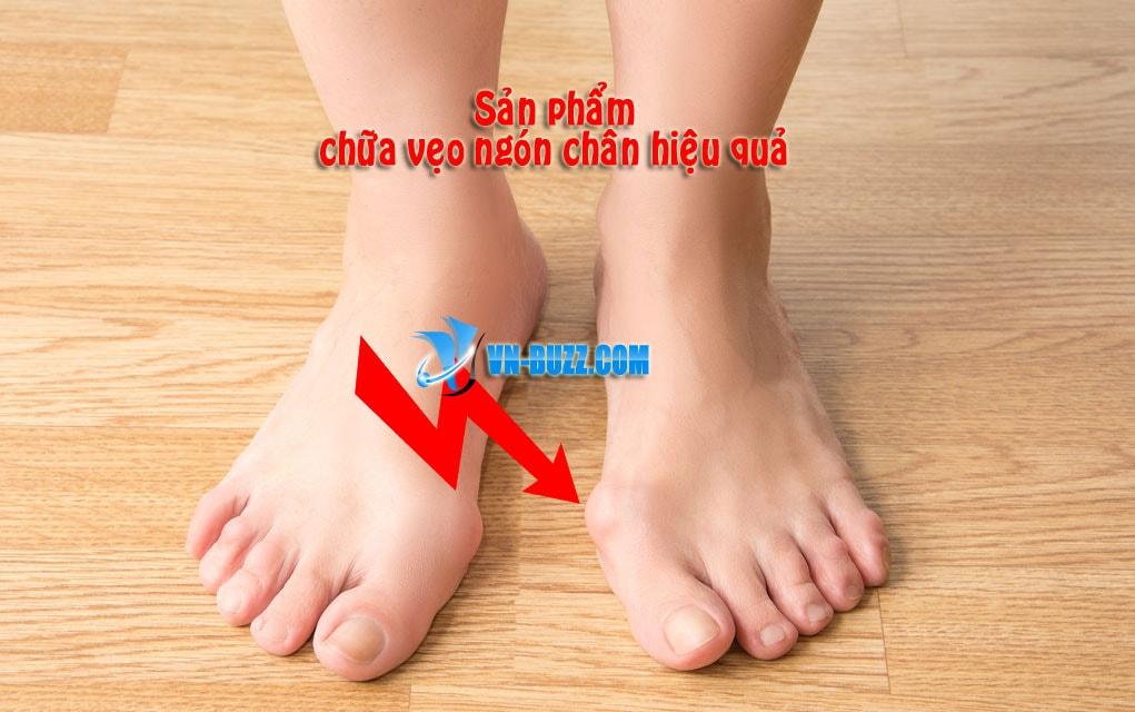sản phẩm chữa vẹo ngón chân cái hiệu quả