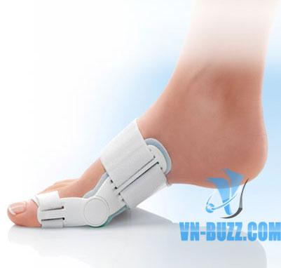 Nẹp Valufix điều trị biến dạng ngón chân cái